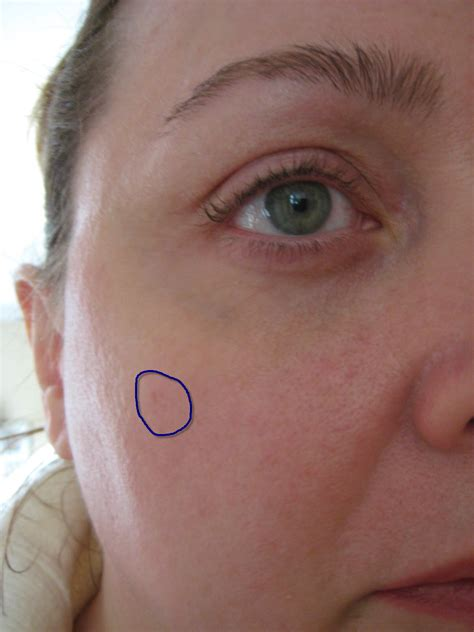 bluish coloration of the skin bluish discoloration of the skin pictures photos