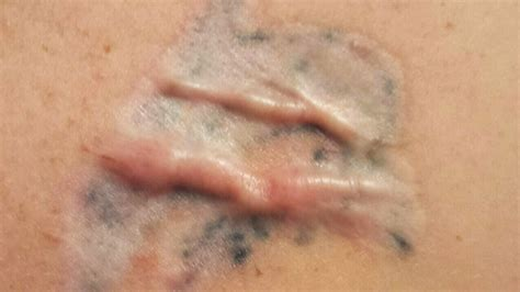 scars after tattoo removal montreal claims removal treatment resulted in