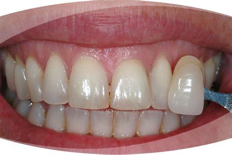 enlighten teeth whitening  leeds  headingley dental