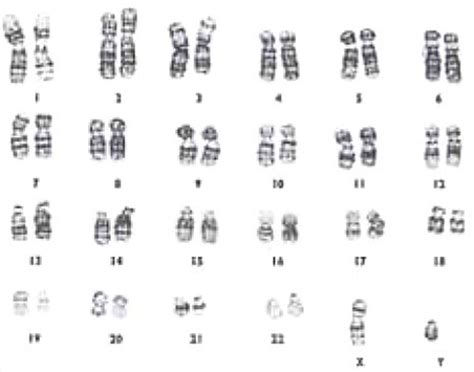 banding pattern definition biology inheritance of characters 1 2 2 the chromosomes that