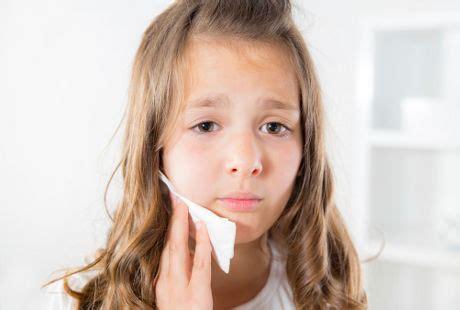 tips atasi sakit gigi  anak   bulan hingga