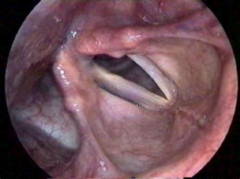 how can a live with laryngeal paralysis laryngeal paralysis view on endoscopy