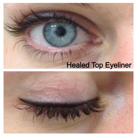 tattoo eyeliner calgary restylane in new jersey