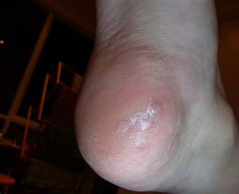 Cause Of Planters Wart by Plantar Warts Pictures Posters News And On Your