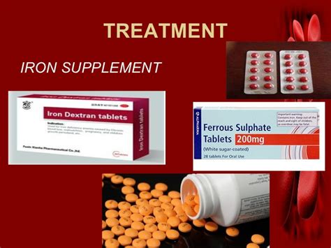 anemic treatment iron deficiency anemia