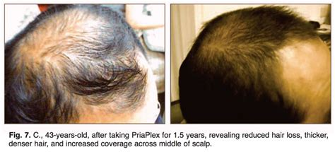 male pattern hair loss reversal reversing age related hair loss and restoring healthy hair