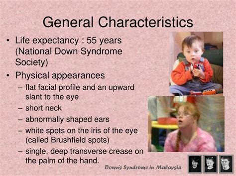 general biography characteristics ppt down syndrome in malaysia powerpoint presentation