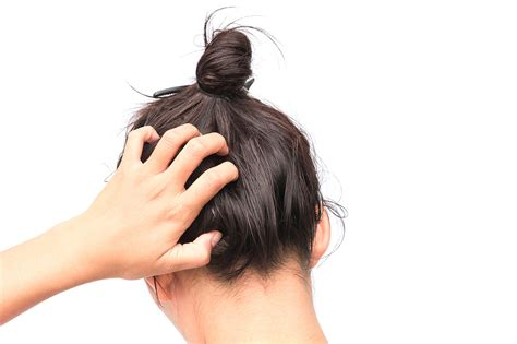 Hair Dryer Effects On Scalp hair scalp itchy diydry co