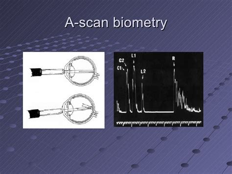 A Scan Biometry pre and postoperative care of the modern cataract patient