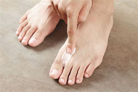 kill athlete s foot in shoes how to treat and prevent athlete s foot the ultimate guide