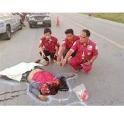 Grossly Mangled Bodies After Accidents Pictures To Pin On