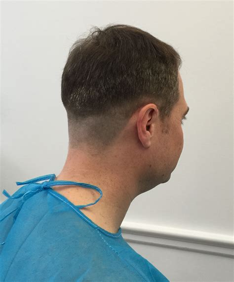 fue hair transplant westminister clinic dr rogers fue day one westminister clinic