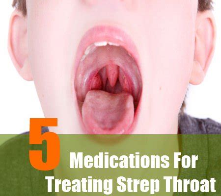 how to treat strep throat at home 1000 ideas about