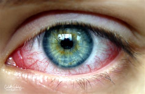 pink eye conjunctivitis pictures