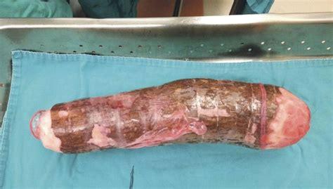 real picture of a vigina m 233 dicos retiram mandioca de 45 cm de homem que a usou como