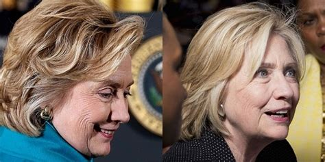 Has Hillary Clinton Had Cosmetic Work Done | has hillary clinton had work done hillary clinton