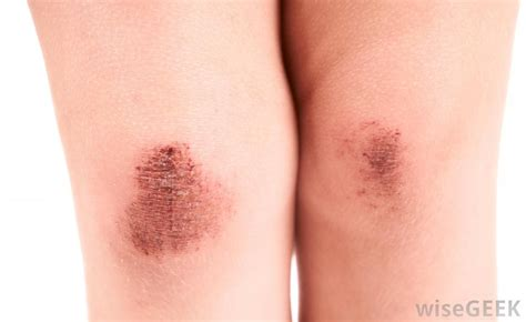 what causes an itchy scab with pictures