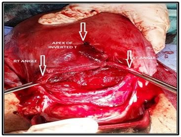 uterus after c section inverted t incision restricted to lower uterine segment