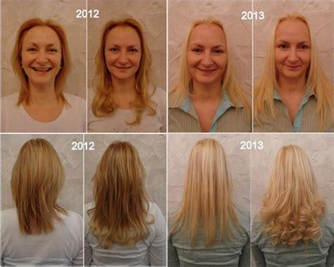 haare die nach innen wachsen kurze haare wachsen lassen