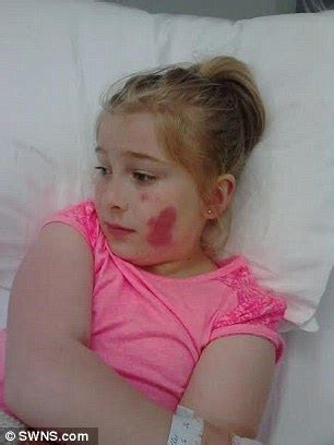 cute hairstyles for 10 year old girl dance girl 10 left with third degree burns after picking up