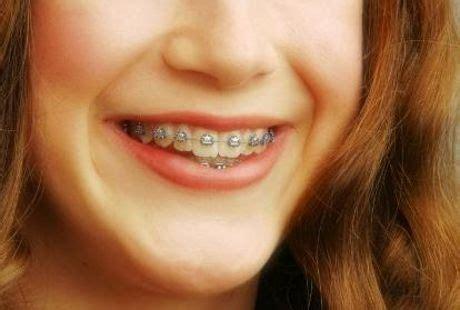 Biaya Pemutihan Gigi Di Jogja pasang behel gigi jogja apakah behel dan pemutih gigi