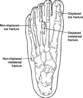 teste metatarsali toe and metatarsal fractures broken toes foot and