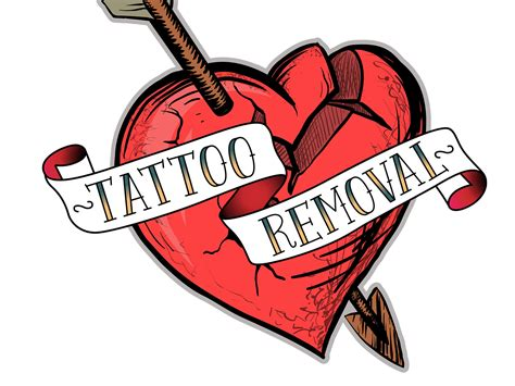 tattoo removal investment removal the modern extraction of ancient the