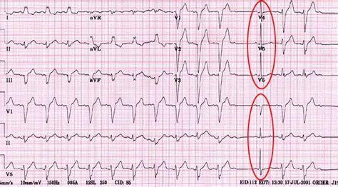 lbbb pattern infarction ecg