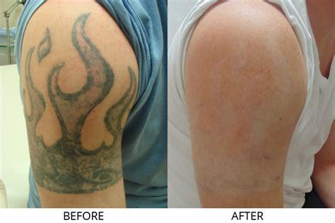 tattoo removal in boston med spa skin treatments sudbury removal boston ma