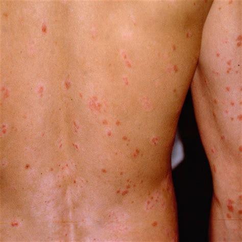 skin problems diabetes skin conditions diabetes treatment guide