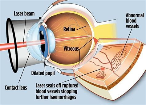 Risk Of Blindness From Lasik cool laser could stop diabetics going blind newton