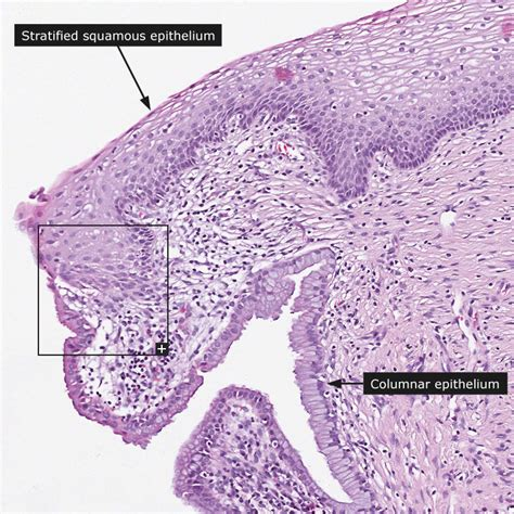 portio uterina dictionary normal cervix uterine the human protein atlas