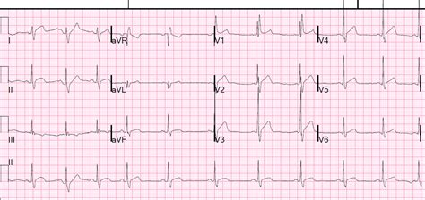 rsr pattern ecg meaning dr smith s ecg blog right bundle branch block with st