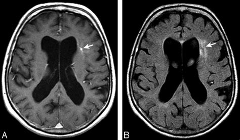 severe migraine after c section brain parenchymal signal abnormalities associated with