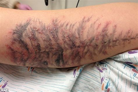 can you get a tattoo while on antibiotics sue neser at neser insurance before you get inked
