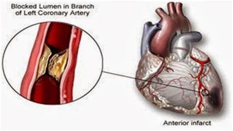 infark miokard akut ima myocardial infarction medical