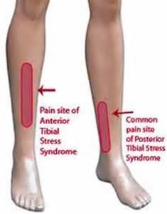 positive health article shin splints