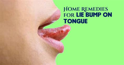 is a little bump on the top of hair instyle in 2015 7 home remedies for lie bumps on tongue with video