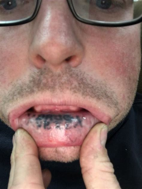 inner lip tattoo removal how do inner lip tattoos last quora