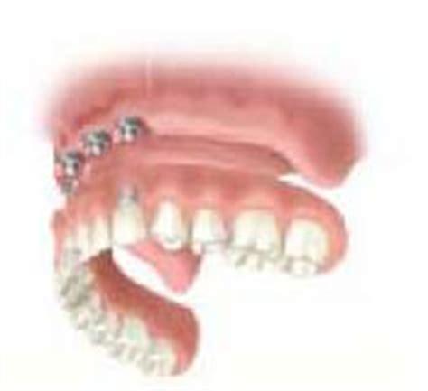 protesi dentarie mobili senza palato paziente senza denti edentulo le soluzioni dentiere