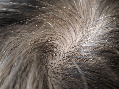 how to kill lice on bedding how to kill lice on bedding bedding sets