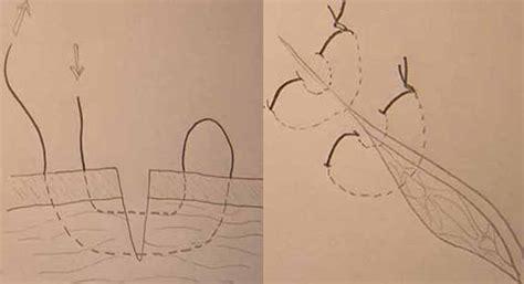 punti sutura interni guia de suturas