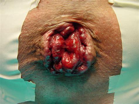 immagini di emorroidi interne immagini emorroidi esterne interne foto emorroidi