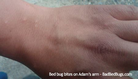 bed bug bites on hands bed bug wings discussion 5