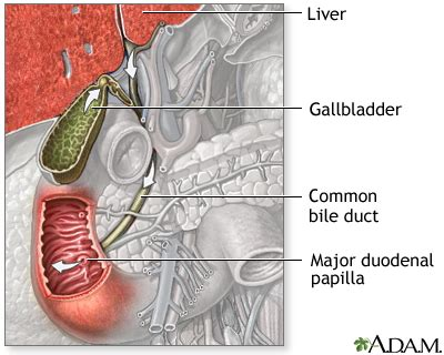 Fatty Deposits In Stool by Primary Biliary Cirrhosis
