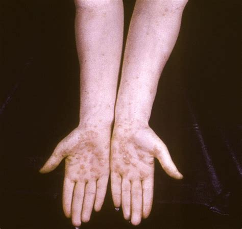 syphilis rash on hands spirochetes and neisseria