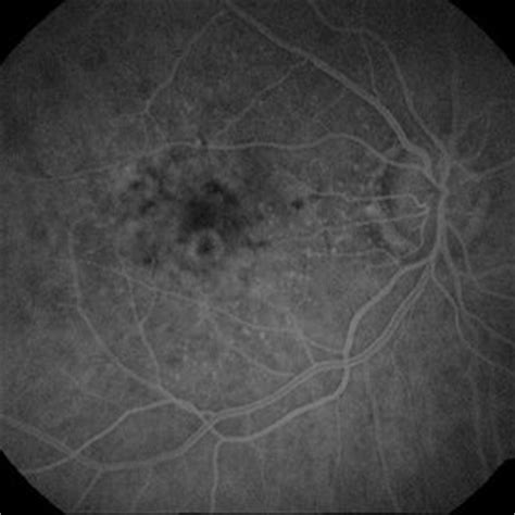 early pattern dystrophy discover images retina image bank