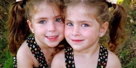 gemelli monozigoti diversi artrite psoriasica e gemelli omozigoti