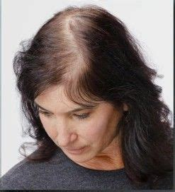 hairstyles for hiding a bald spot pin by jan drevnak on hair beauty pinterest