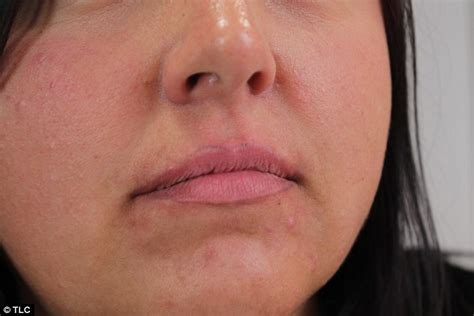 tattoo lips near me beauty therapist left feeling like a freak after wonky